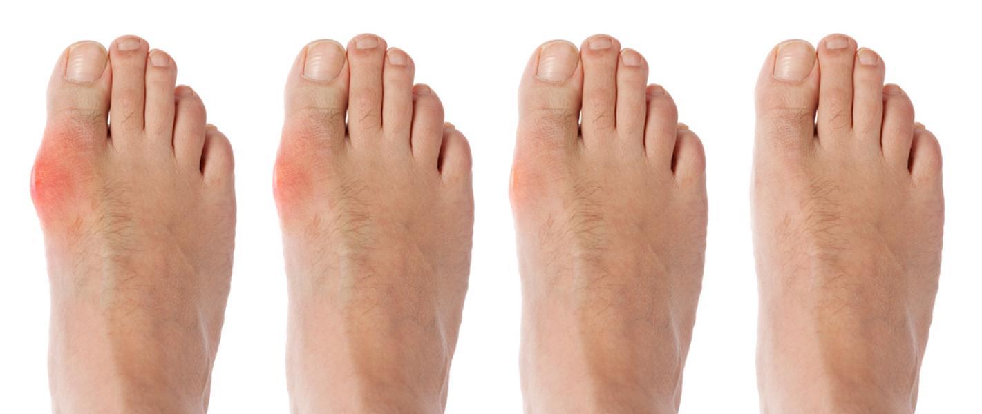 Inflamația metatarsică a tratamentului piciorului